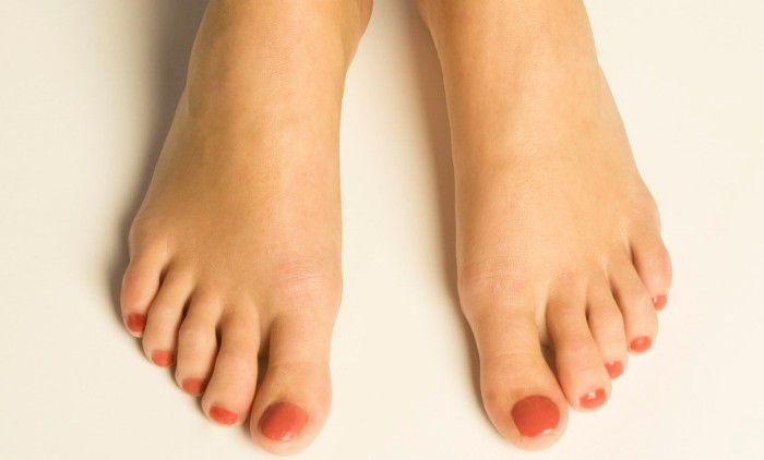oedeme mains et pieds