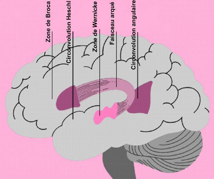 aphasie de broca symptômes