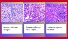 adenocarcinome colique prostatique ovarien